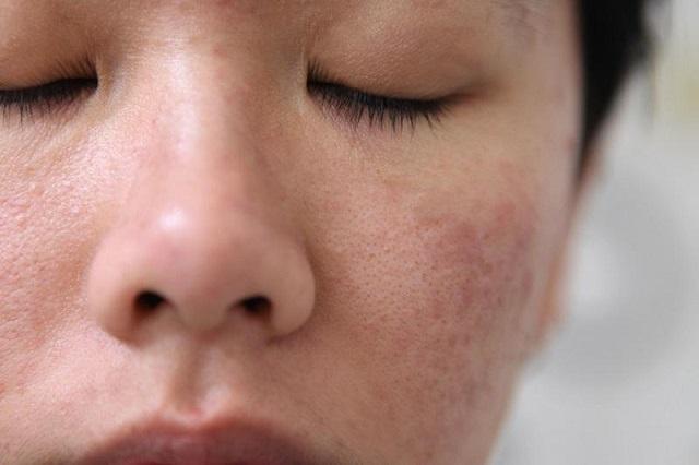 Tình trạng da của mình 1