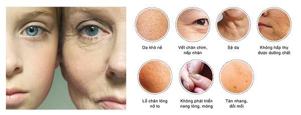 Da thiếu collagen